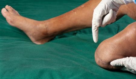 orthopaedics: Un m�dico examina el mu��n despu�s de una amputaci�n por debajo de la rodilla Foto de archivo