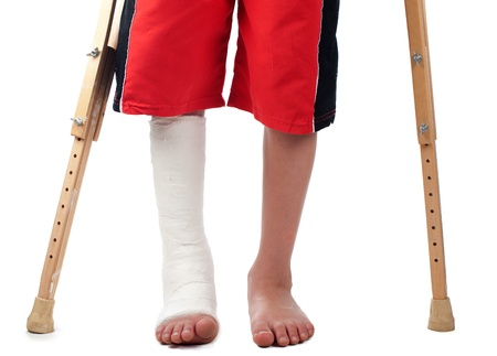 pierna rota: Un niño con una fractura en la pierna derecha se esfuerza por caminar con dos muletas.