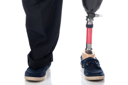 An adult man with a below knee amputation stands upright with his new prosthetic leg.