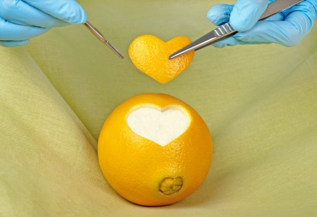 A surgeon excises  a piece in the shape of a heart from an orange Stock Photo - 20461877