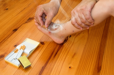An adult man burns the foot of a child with sores in different stages of healing.