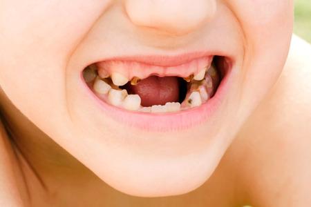 disease of teeth or stomatology