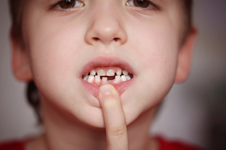 milk tooth: Closeup portrait Little happy boy proud to loose his milk tooth show hole in mouth Stock Photo