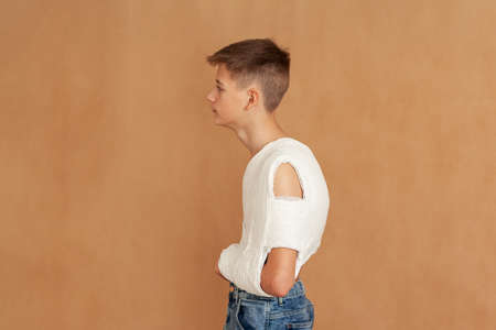 Boy with broken clavicle on beige background. Young man wears a plaster cast to fix the clavicle and immobilize the shoulder in case of a collarbone fracture. Side view.