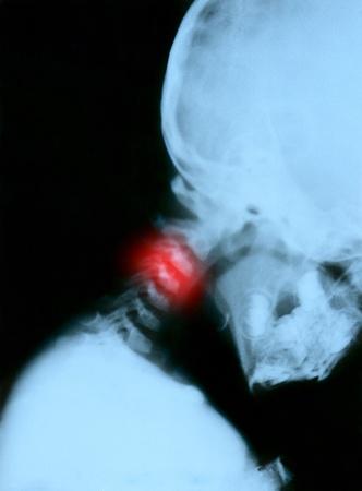 vertebra: Spine 3rd vertebra xray. Child 3 years. Scanned from the film