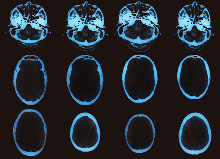 tomography: X-ray image of the brain made using computed tomography Stock Photo