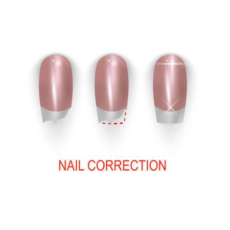 Broken or bitting nail correction. vector illustration set on white background.