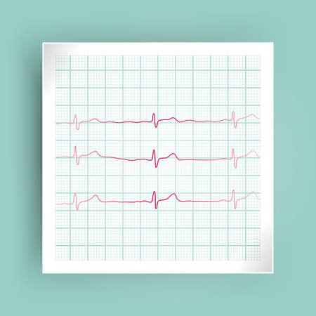 Heart rate graph, Heart beat line. Ekg icon wave, vector illustration. Ilustração