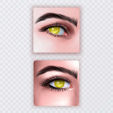 Illustration of realistic human eye of a girl with spiral hypnotic iris