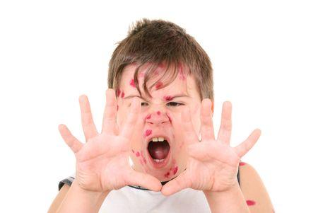小さな男の子は白い背景の上の鶏痘と病気