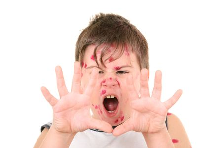 Little boy is ill with chicken pox on white background Imagens