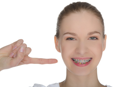Smiling happy girl indicates braces on teeth isolated on white Standard-Bild