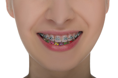 Closeup of smiling mouth with braces on teeth isolated on white photo