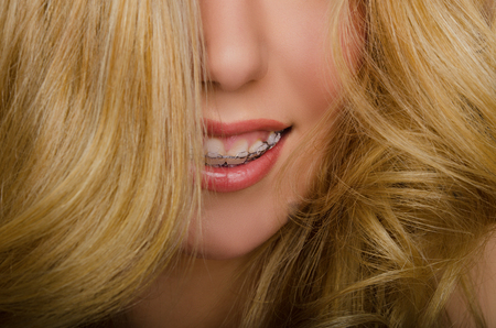frizz: face of beautiful woman with long hair and braces studio shot