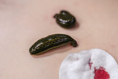 Close up of a medical leeches on his stomach in the liver area and the navel.