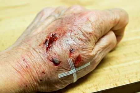 Back of damaged hand during cleaning and dressing Stock Photo