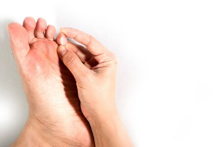 Close up of peeling and blister foot. Causes of morbidness foot with water inside (athlete's foot), dehydration or sweaty feet. Health care concept.