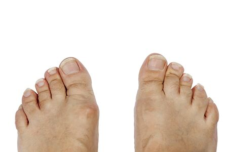Long toenails. Isolate on a white background Stock Photo