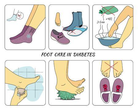 Pielęgnacja stóp w cukrzycy
