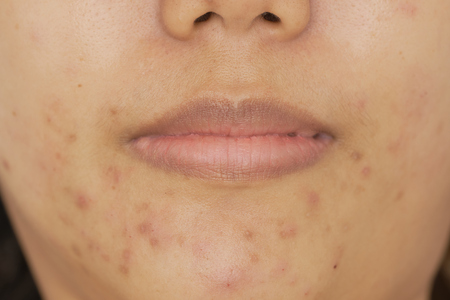 Asian women aged 25-29 years, light brown skin. Facial inflammation of the germs caused birth. Acne pimples on the face. Stock Photo