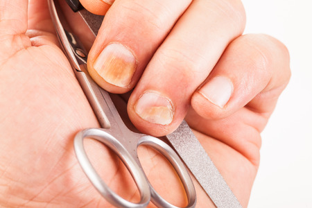 the ugly: Fingernails with nail fungus