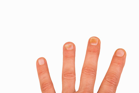 nail scissors: Fingernails with nail fungus
