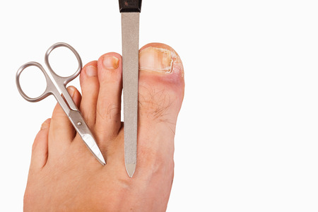 toenail: Foot with toenail fungus, scissors and file-isolated Stock Photo