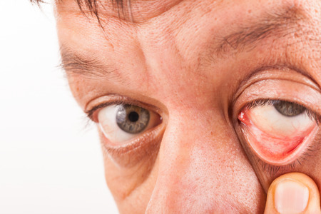 and eyelid: A man pulls his lower eyelid with his finger down