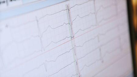 ECG waves on the hospital monitor