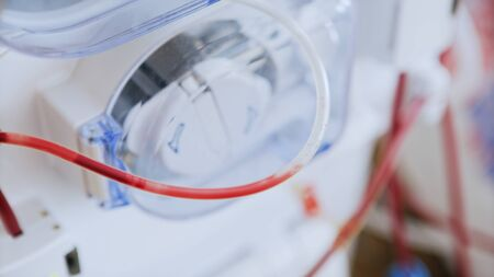 Blood Purification Medical Procedure - Plasmapheresis, Dialysis with Medical Device in Hospital