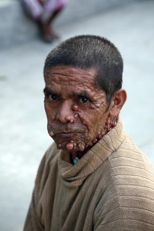 KOLKATA INDIA - JANUARY 26: Streets of Kolkata. Portrait of sick man on January 26, 2009 in Kolkata, India.