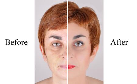 女性美容トリートメントの前後にメイクアップとヘアスタイ リングを適用します。 写真素材