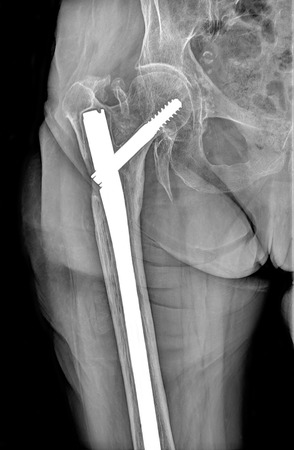 invalidity: Upper part of broken human thigh with steel screw x-ray Stock Photo