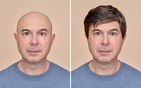 Twee portretten van dezelfde kale man van middelbare leeftijd voor en na het dragen van een pruik
