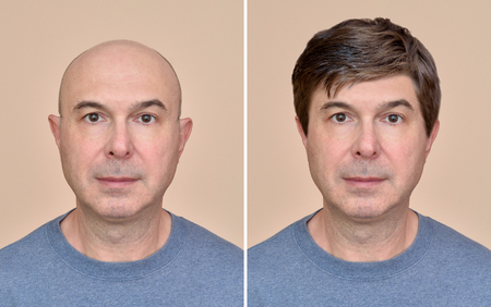Two portraits of a same middle aged bald man before and after wearing wig
