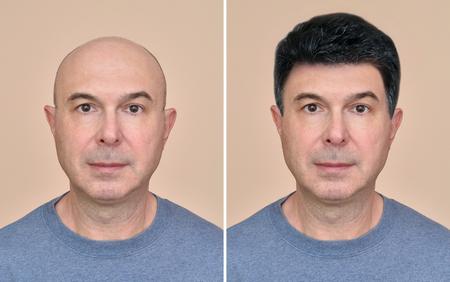 Dos retratos de un mismo hombre calvo de mediana edad antes y después de usar peluca Foto de archivo
