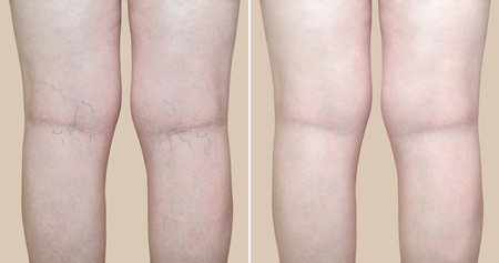 Legs of a woman with varicose veins and capillaries before and after medical treatment