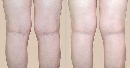 Jambes d'une femme avec des varices et des capillaires avant et après un traitement médical