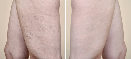 Legs of a woman with varicose veins and capillaries before and after medical treatment Foto de archivo - 109200702