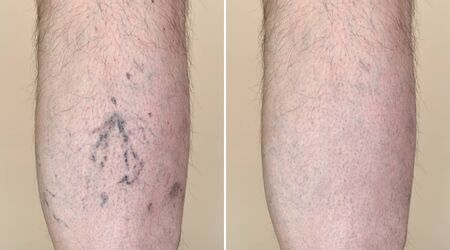 Part of a leg (calf) of the man with varicose veins and capillaries before and after medical treatment Imagens