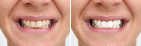 Teeth of a woman before and after correction and whitening 写真素材