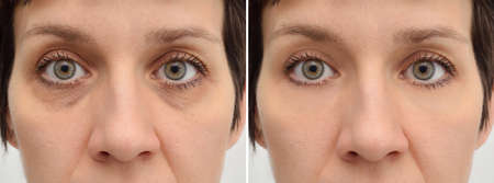 Female eye bags before and after cosmetic treatment or plastic procedure, blepharoplasty. Close-up. Zdjęcie Seryjne