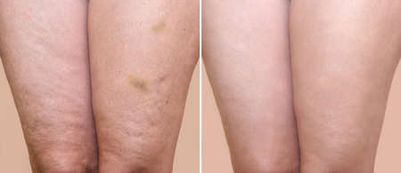 Thighs of a woman with cellulite and bruises before and after medical treatment Foto de archivo