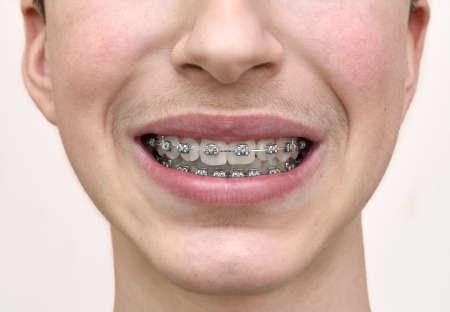 Teenage boy with braces on his teeth. Close-up.