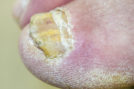 Toenails with common fungal infection.