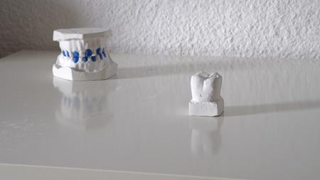 Dentist put artificial teeth on table desk, dental prosthetic dental jaw