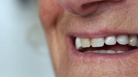 Closeup mouth of elderly woman talking and smiling with perfect teeth Фото со стока - 120404908