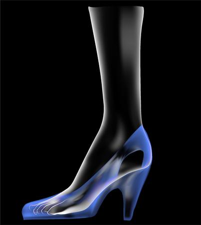 inconvenience: Womens feet under x-ray. Vector illustration Illustration