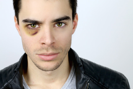 injure: portrait of a handsome young man with a shiner