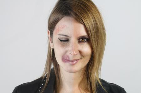 mujer golpeada: la violencia doméstica - retrato de una mujer maltratada Foto de archivo